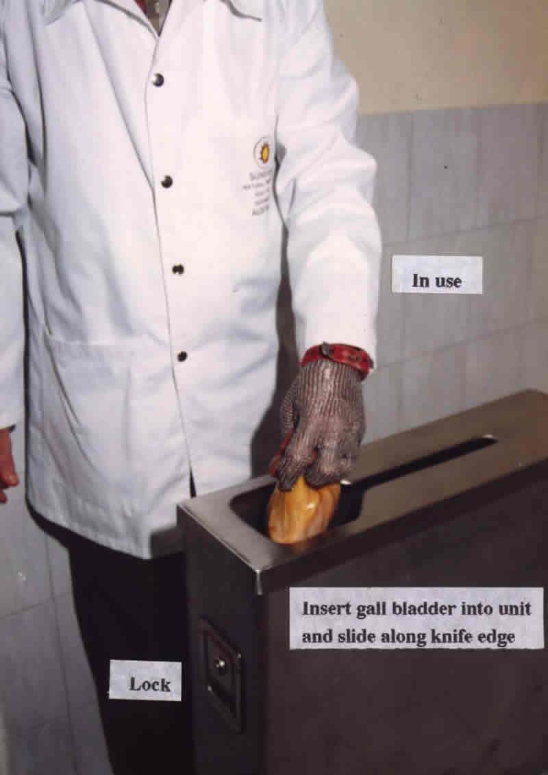 gallstone dropbox